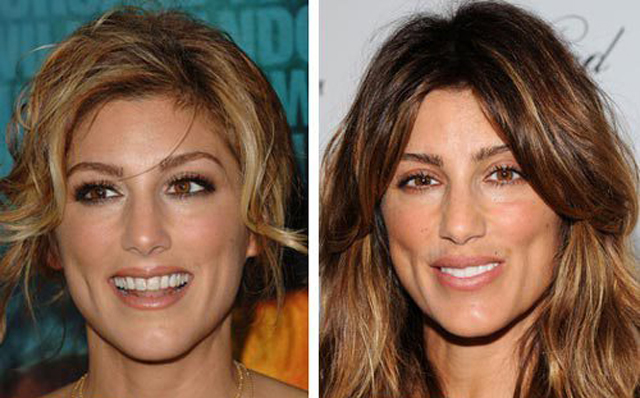 Jennifer Esposito Facelift Plastic Surgery Before and After