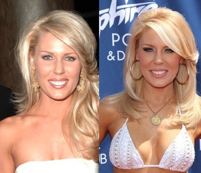 Gretchen Rossi Plastic Surgery Before and After Botox Injections