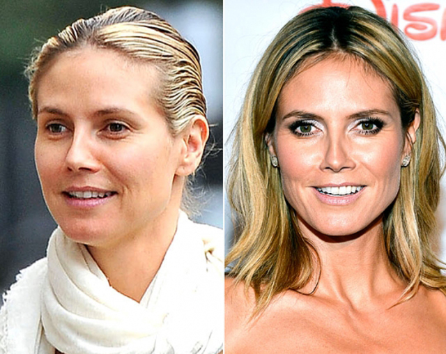 Heidi Klum Plastic Surgery Before and After Botox Injections
