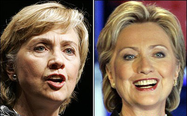Hilary Clinton Facelift Plastic Surgery Before and After