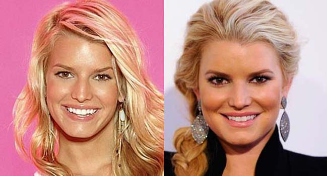 Jessica Simpson Nose Job Plastic Surgery Before and After