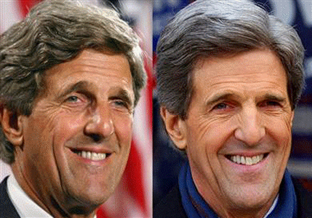 John Kerry Facelift Plastic Surgery Before and After