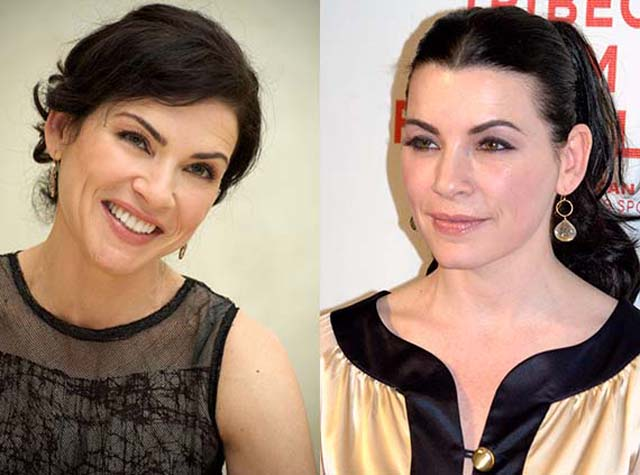 Julianna Margulies Facelift Plastic Surgery Before and After