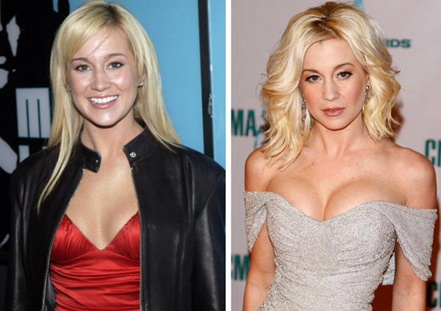Kellie Pickler Breast Implants Plastic Surgery Before and After