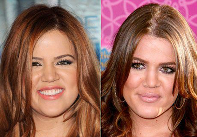 Khloe Kardashian Nose Job Plastic Surgery Before and After