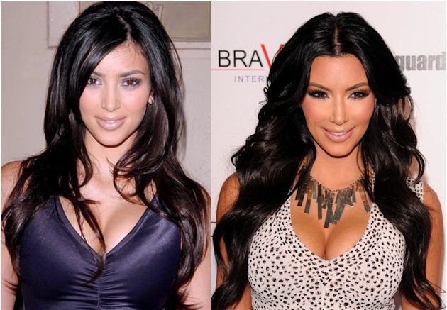 Kim Kardashian Breast Implants Plastic Surgery Before and After