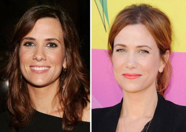 Kristen Wiig Nose Job Plastic Surgery Before and After