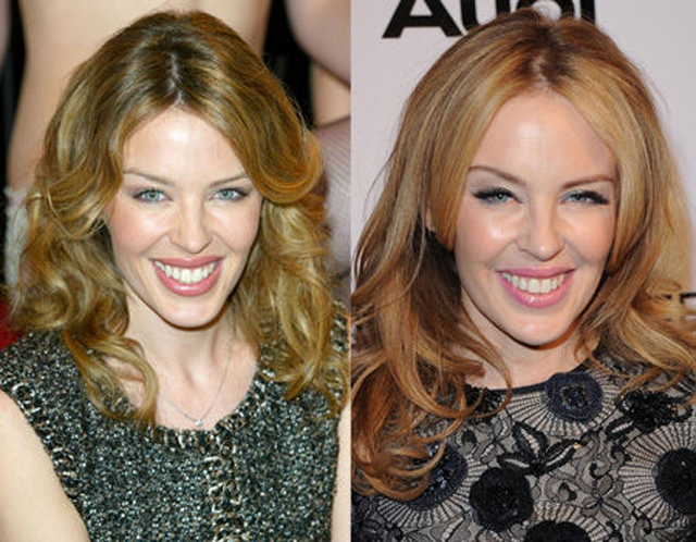 Kylie Minogue Plastic Surgery Before and After Botox Injections