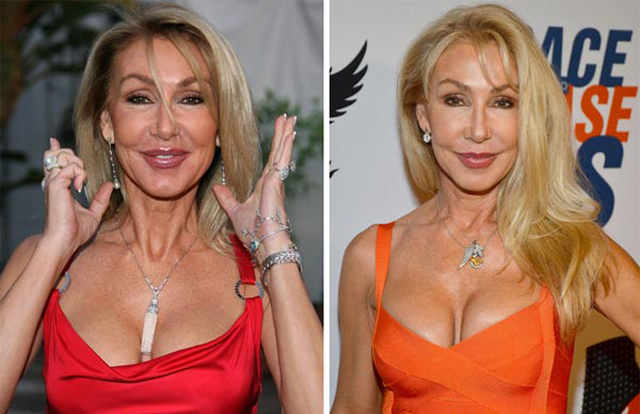 Linda Thompson Facelift Plastic Surgery Before and After