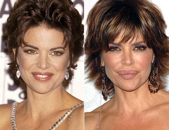Lisa Rinna Lip Augmentation Plastic Surgery Before and After