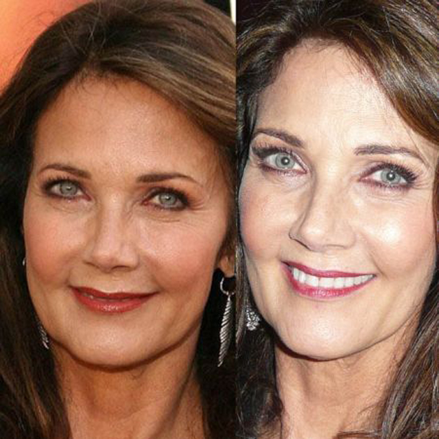 Lynda Carter Facelift Plastic Surgery Before and After
