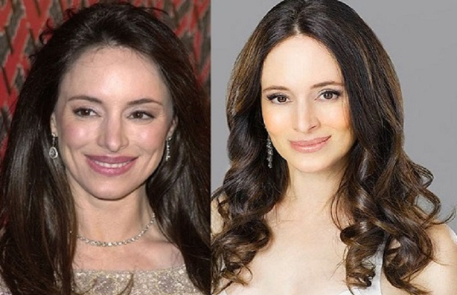 Madeleine Stowe Plastic Surgery Before and After Botox Injections