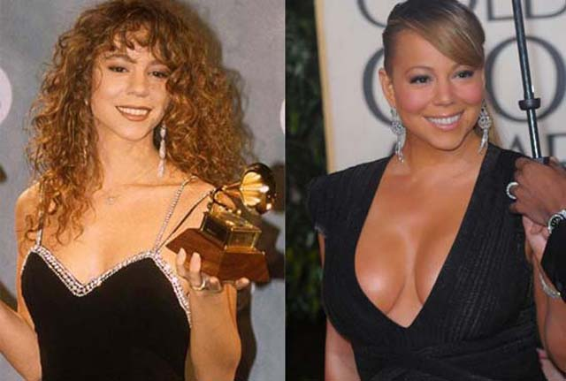 Mariah Carey Breast Implants Plastic Surgery Before and After