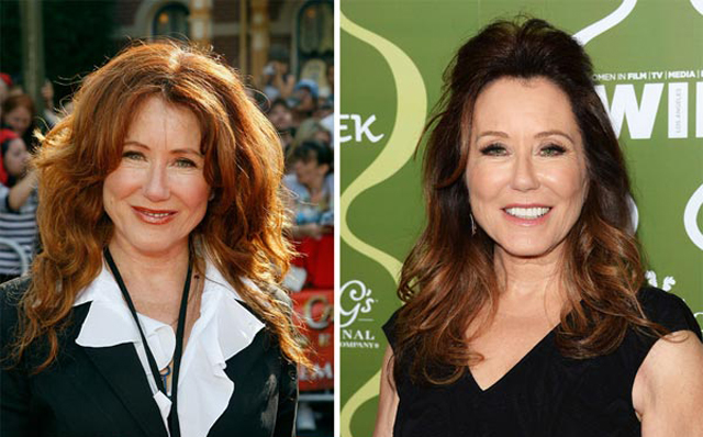 Mary McDonnell Facelift Plastic Surgery Before and After