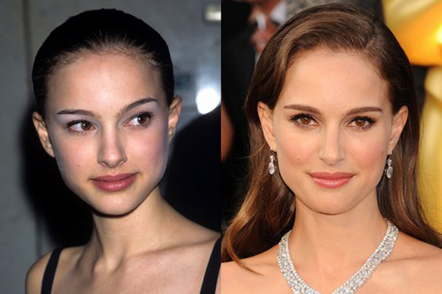 Natalie Portman Nose Job Plastic Surgery Before and After