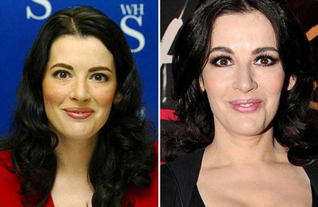 Nigella Lawson Plastic Surgery Before and After Botox Injections