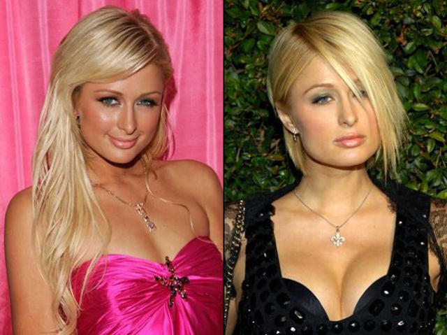 Paris Hilton Breast Implants Plastic Surgery Before and After