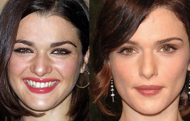Rachel Weisz Facelift Plastic Surgery Before and After