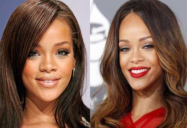 Rihanna Nose Job Plastic Surgery Before and After