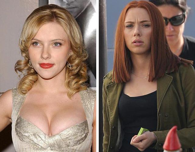 Scarlett Johansson Breast Reduction Plastic Surgery Before and After