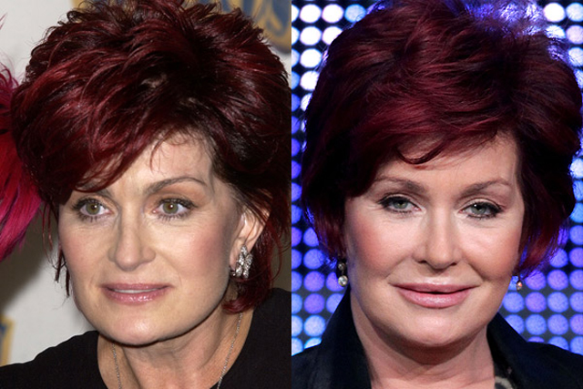 Sharon Osbourne Facelift Plastic Surgery Before and After