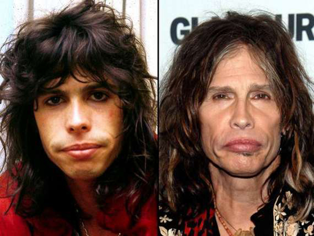 Steven Tyler Facelift Plastic Surgery Before and After