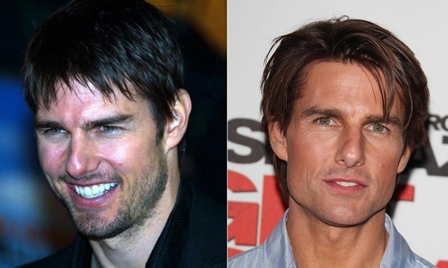 Tom Cruise Facelift Plastic Surgery Before and After