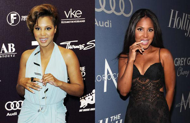 Toni Braxton Plastic Surgery Before and After Botox Injections