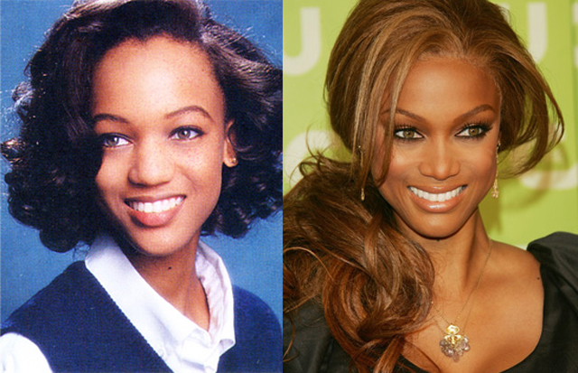 Tyra Banks Nose Job Plastic Surgery Before and After