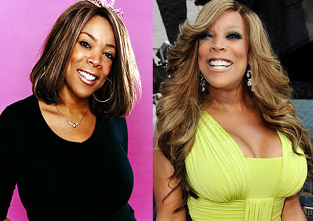 Wendy Williams Breast Implants Plastic Surgery Before and After