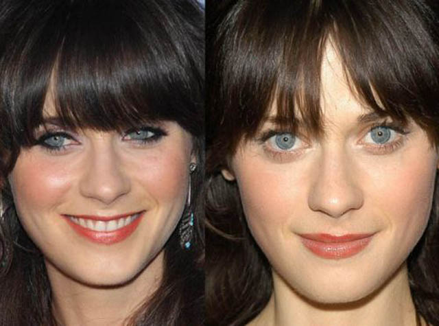 Zooey Deschanel Nose Job Plastic Surgery Before and After