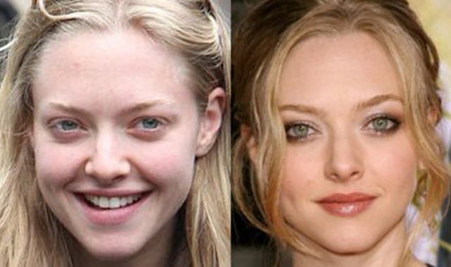 Amanda Seyfried Nose Job Plastic Surgery Before and After
