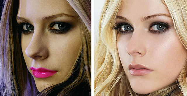 Avril Lavigne Nose Job Plastic Surgery Before and After