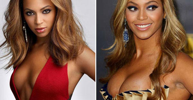 Beyonce Breast Implants Plastic Surgery Before and After