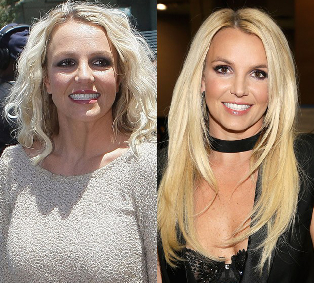 Britney Spears Plastic Surgery Before and After Botox Injections