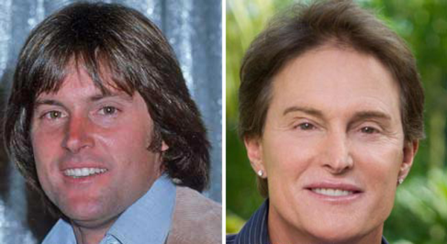 Bruce Jenner Facelift Plastic Surgery Before and After