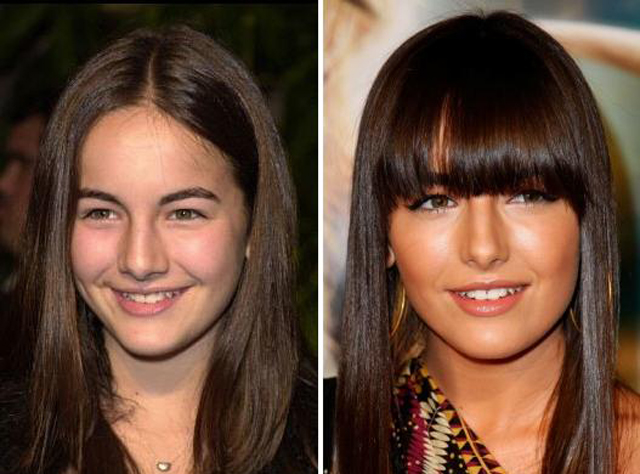 Camilla Belle Nose Job Plastic Surgery Before and After