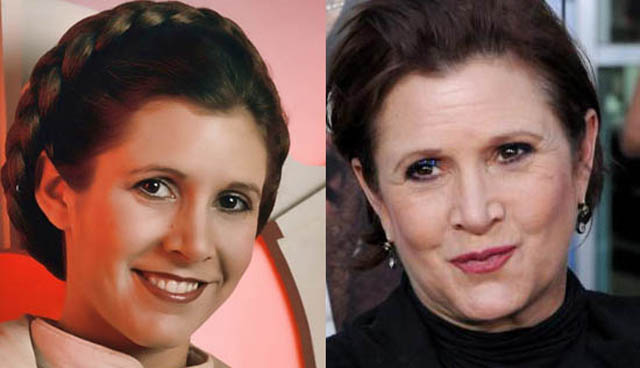 Carrie Fisher Facelift Plastic Surgery Before and After