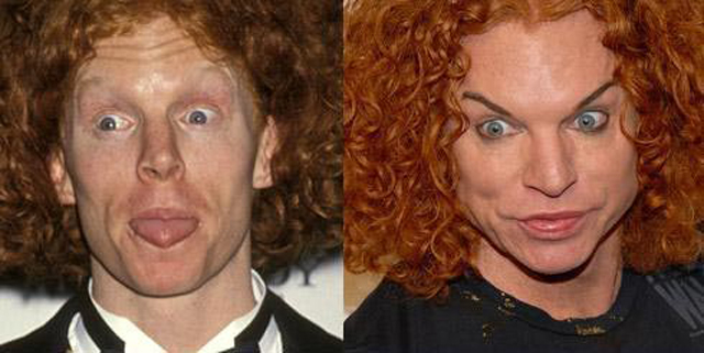 Carrot Top Plastic Surgery Before and After Botox Injections