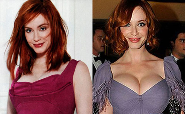 Christina Hendricks Breast Implants Plastic Surgery Before and After