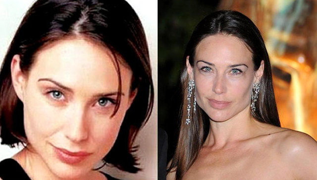 Claire Forlani Plastic Surgery Before and After Botox Injections