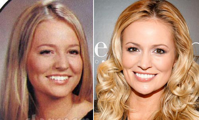 Emily Maynard Nose Job Plastic Surgery Before and After