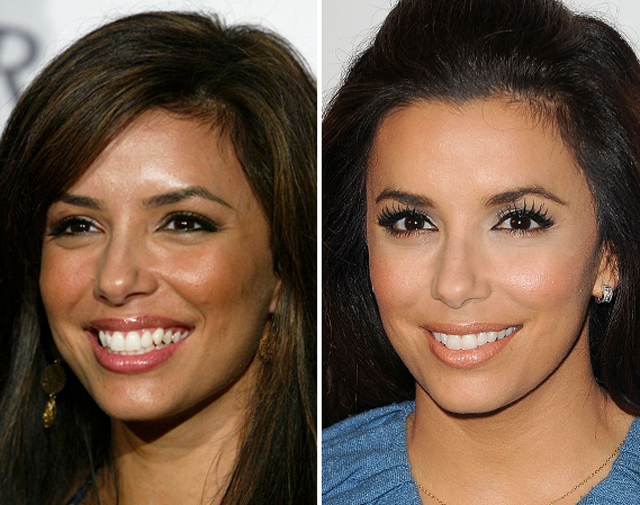 Eva Longoria Nose Job Plastic Surgery Before and After