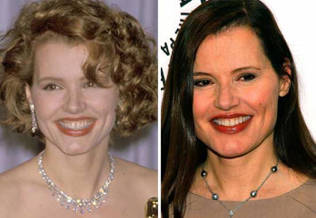 Geena Davis Facelift Plastic Surgery Before and After