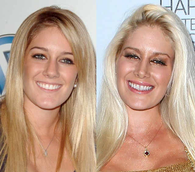 Heidi Montag Nose Job Plastic Surgery Before and After