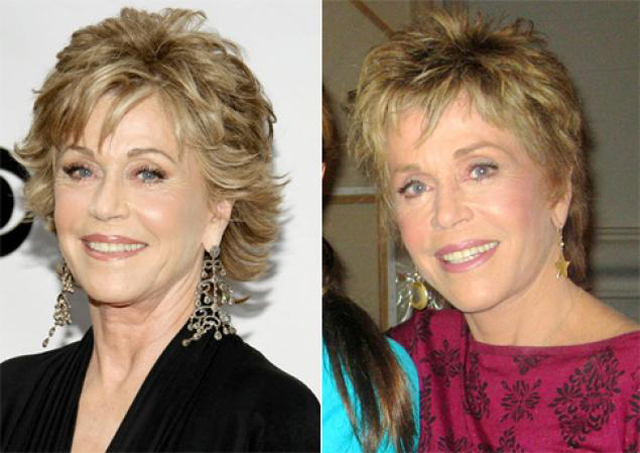 Jane Fonda Facelift Plastic Surgery Before and After