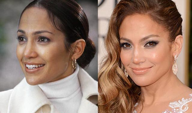 Jennifer Lopez Nose Job Plastic Surgery Before and After