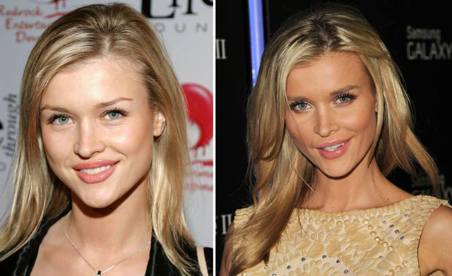 Joanna Krupa Plastic Surgery Before and After Botox Injections