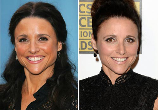 Julia Louis-Dreyfus Nose Job Plastic Surgery Before and After