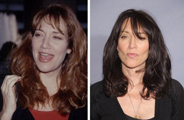 Katey Sagal Facelift Plastic Surgery Before and After